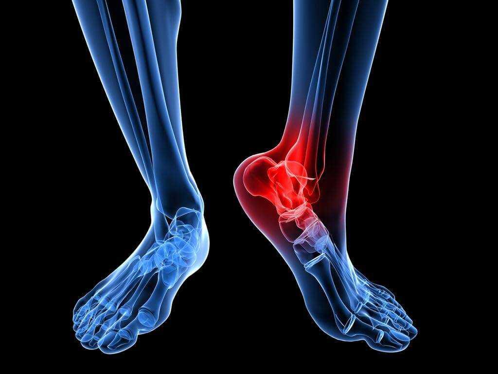 Ayak Bileği Ağrısı için Hangi Doktora Gidilmeli?
